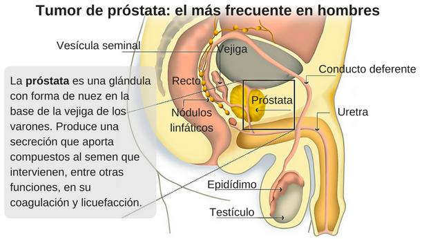 prostata y el alcohol