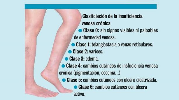 Venosa piernas enfermedad en