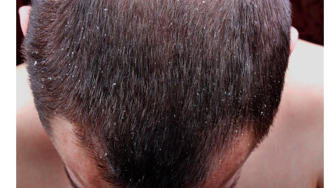 remedios para la caida del cabello en exceso en hombres
