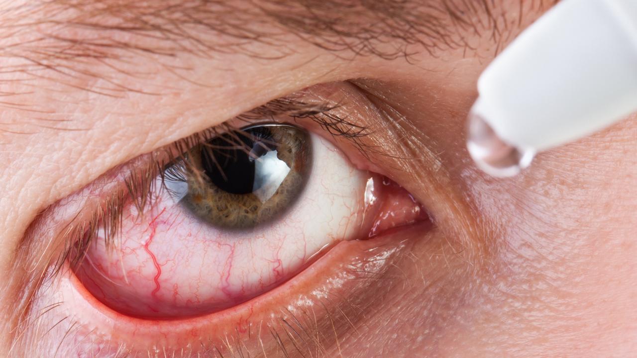 Aliviar picor ojos secos