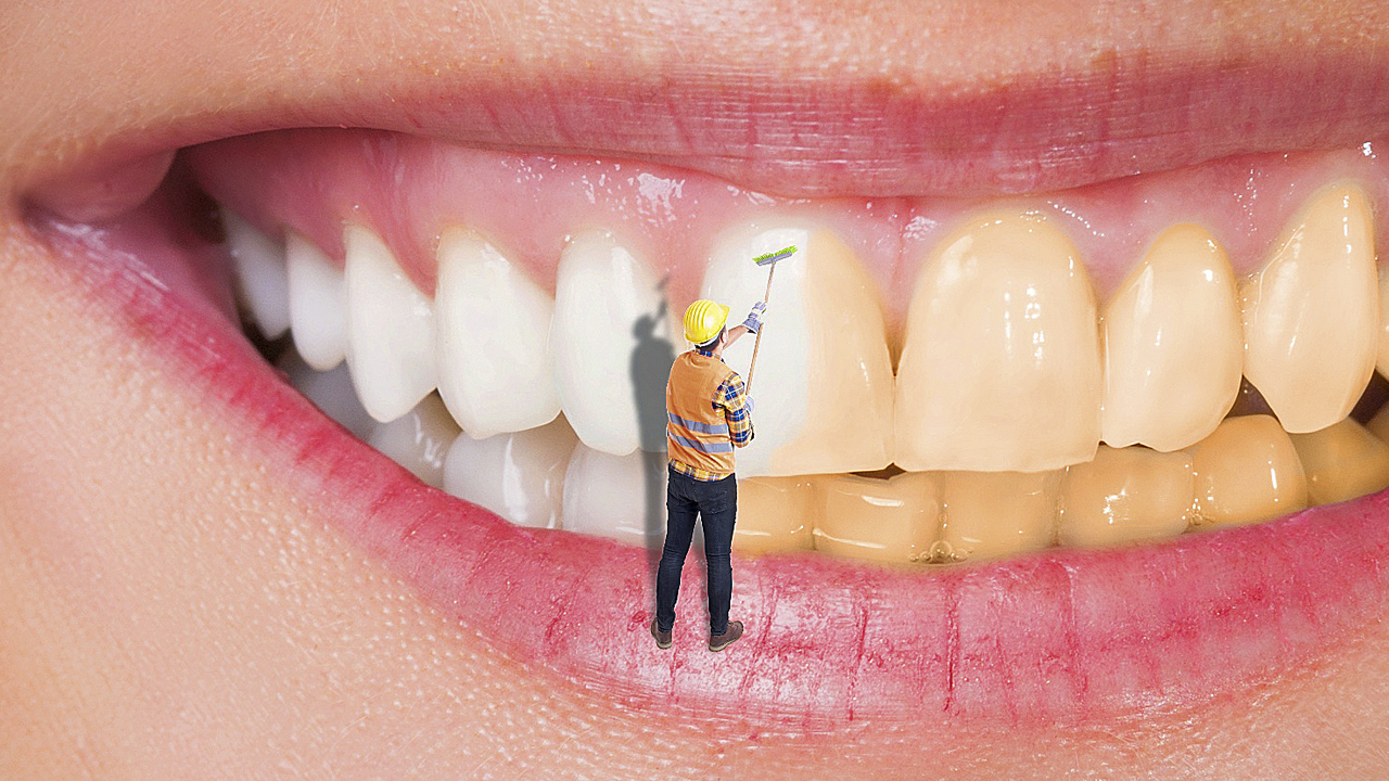 la gingivitis se contagia por un beso