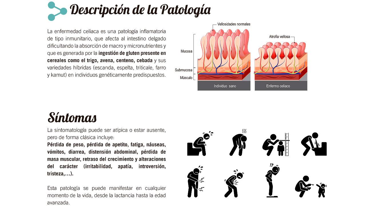 hipertension dieta y ejercicio