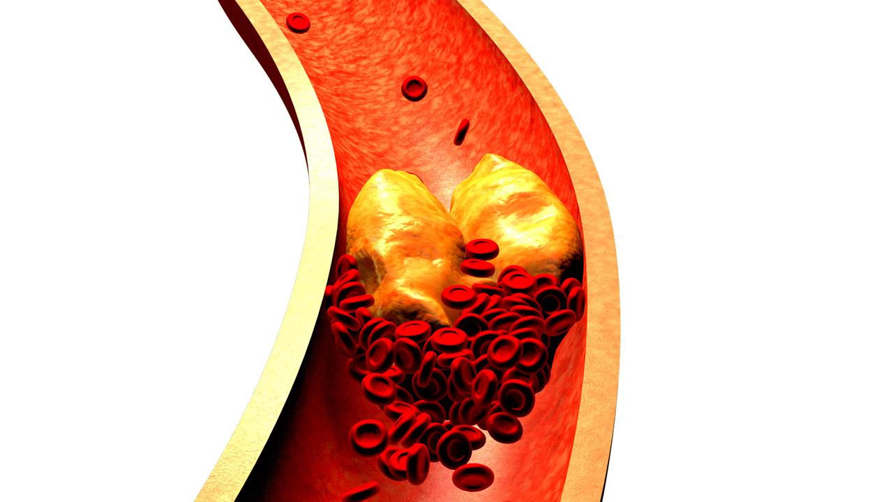 Colesterol ldl alto o que significa