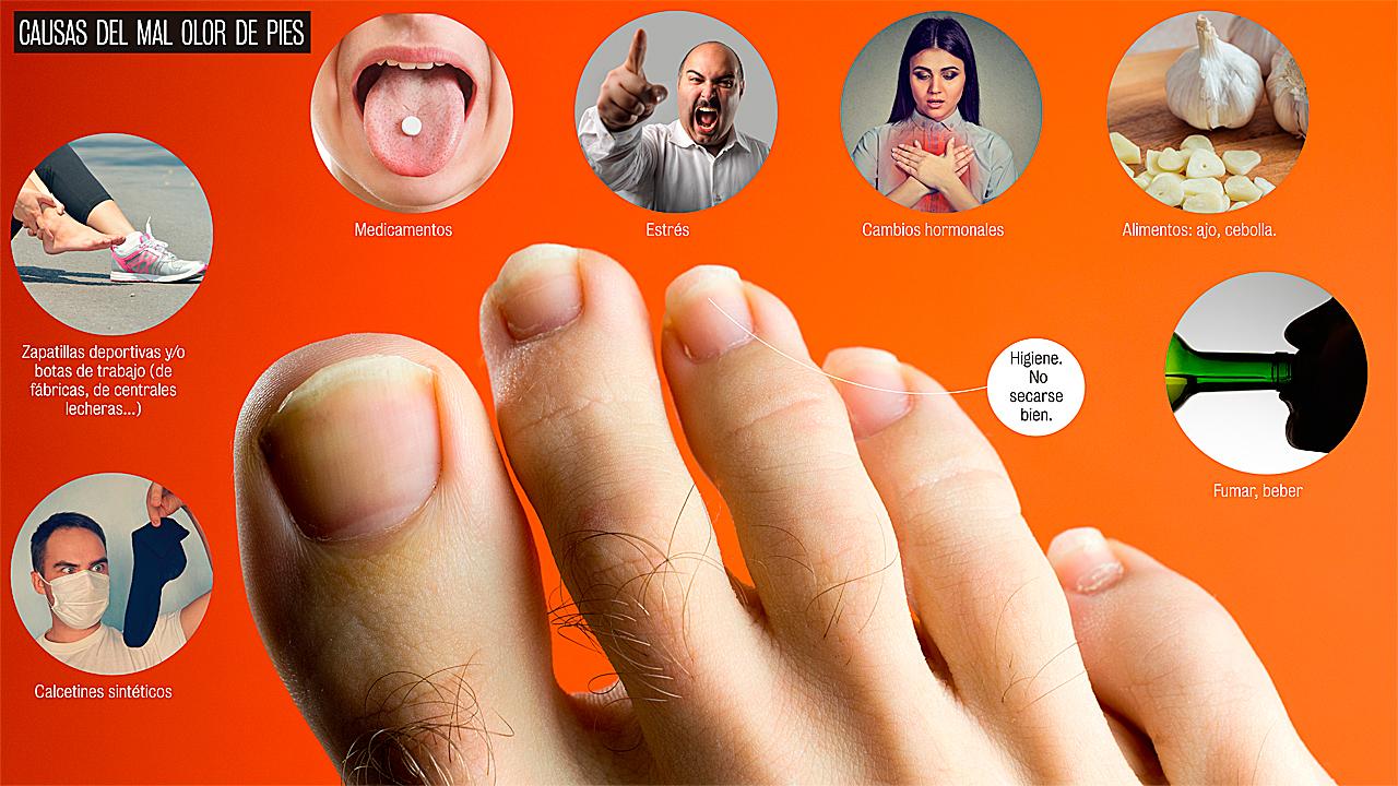 causas para el olor de pies