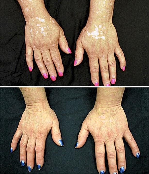 dieta para controlar la artritis reumatoide