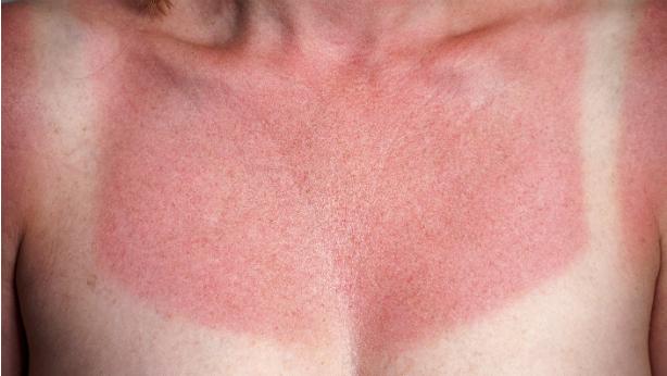 Crema para quemaduras de aceite en la cara
