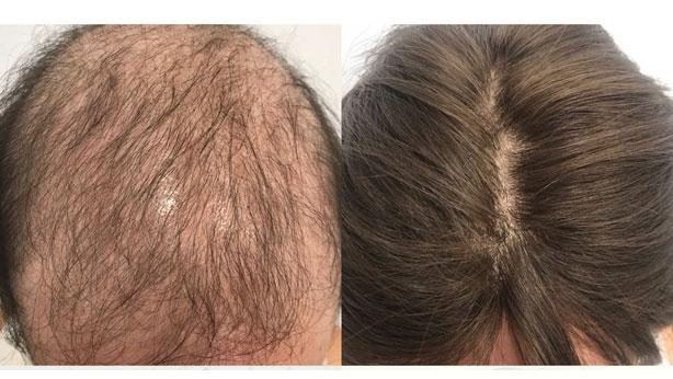 200e21086e9ec En los enfermos que no recuperan de forma espontánea el pelo y presentan  alopecia definitiva posquimioterapia